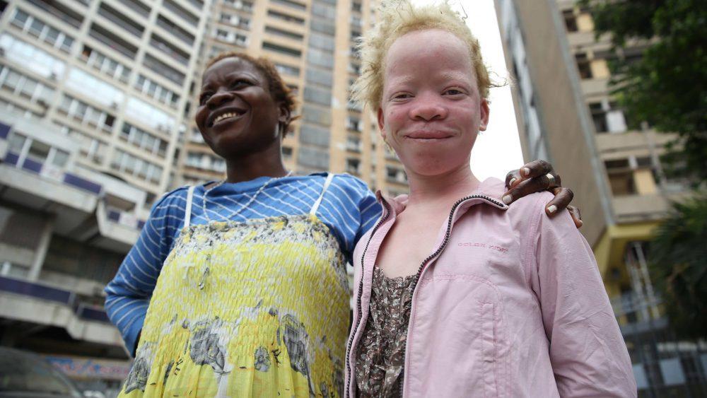 jeune fille albinos Kinshasa